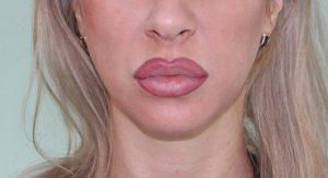 Накачать губы татуажем 4