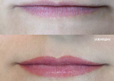 увеличение тонких губ без заступа зажившие