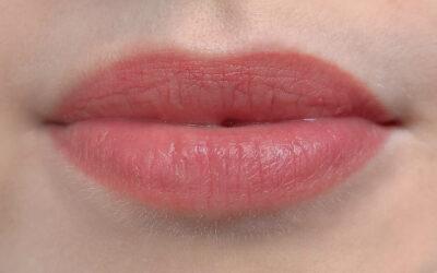 Кейс по выравниванию губ